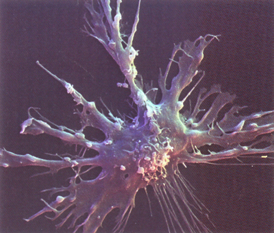 Dendritic Cells Histology Dendritic Cell