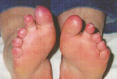 crest syndrome